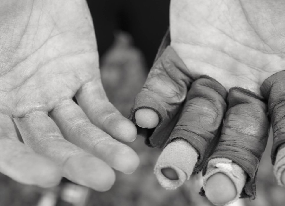 An athletes hands in bandages